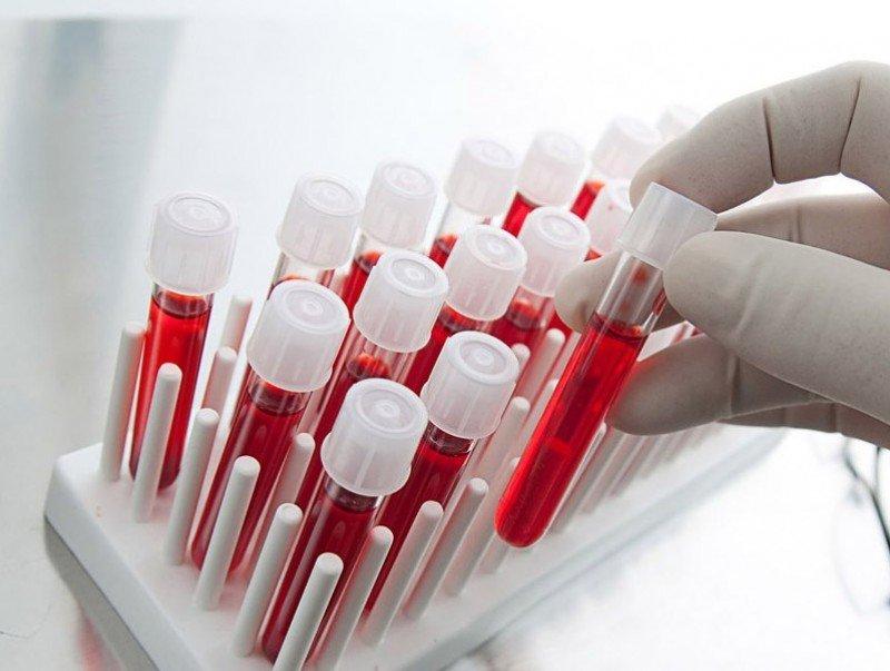 Элэгний В вирусын халдвараас сэргийлж, вакциндаа хамрагдаарай